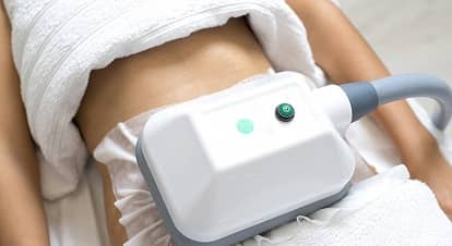 Does fat come back after CoolSculpting