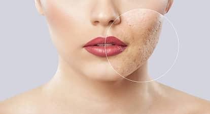 Skin Resurfacing Treatments