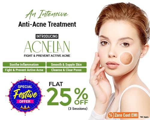 Vlcc Anti Acne Treatment