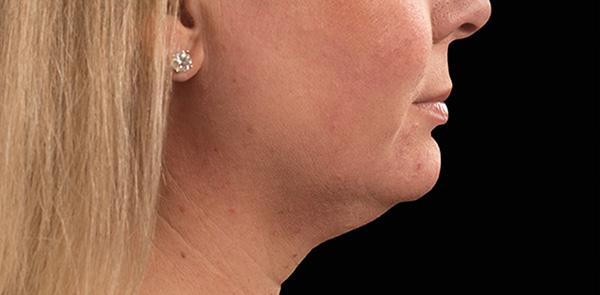 Coolsculpting | 100% Non-Invasive | US FDA Approved Fat