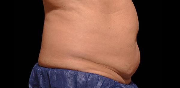 Coolsculpting | 100% Non-Invasive | US FDA Approved Fat Freezing